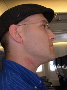 Man on plane with irritated skin from shaving rash